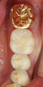 大臼歯の大きな虫歯セラ13,11-2ミック.jpg