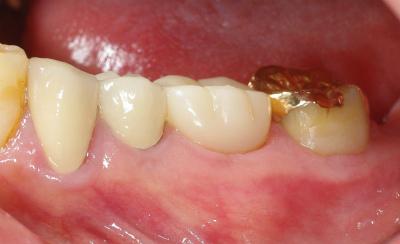 大臼歯の大きな虫歯をセラミック13,11-3.jpg