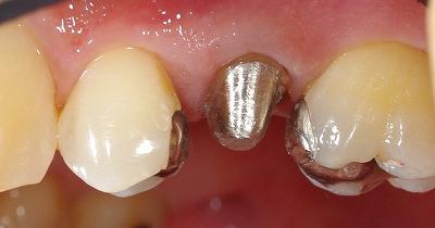 第二小臼歯LAVA1.jpg