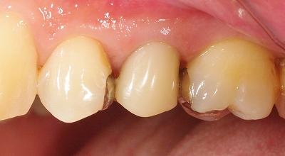 第二小臼歯LAVA2.jpg