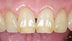 茶色い前歯を白く1.jpg