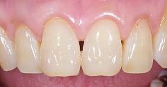 茶色い前歯を白く2.jpg