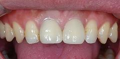 中まで変色した歯質ー3.jpg