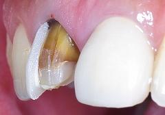 中まで変色した歯質ー4.jpg