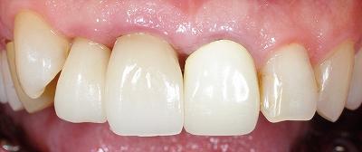 挺出による歯根露出2.jpg