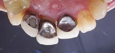 挺出による歯根露出3.jpg