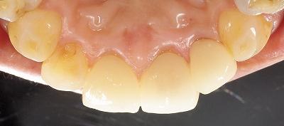 変色歯はセラミッククラウンで5.jpg