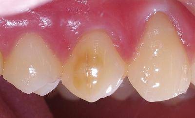 エナメル質形成不全上顎第一小臼歯、、、1.jpg