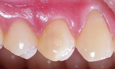 エナメル質形成不全上顎第一小臼歯、、、2.jpg