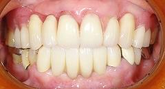 がたがたな前歯をきれいに2.jpg