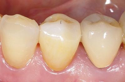 ジルコニア・歯冠破折・第一小臼歯2.jpg