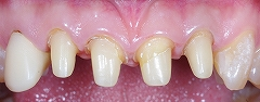 4前歯Eーmax-1.jpg