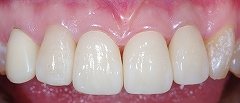 4前歯E-max-2.jpg