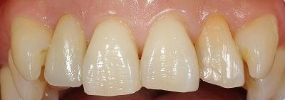 セラミッククラウンを被せたのはどの歯.jpg