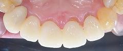 4前歯E-max-4.jpg