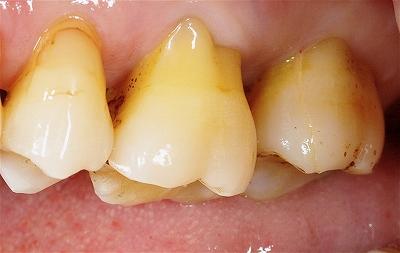 右上第二大臼歯歯根破折3-1.jpg
