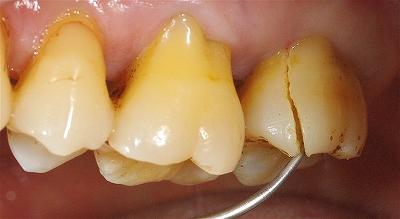 右上第二大臼歯歯根破折3-2.jpg