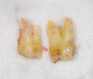 右上第二大臼歯歯根破折3-3.jpg
