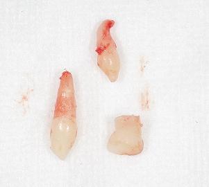 乳歯過剰歯2本2.jpg