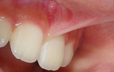 上唇小帯切除術前、術後3.jpg