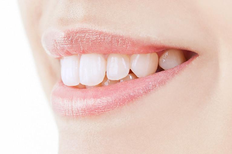 当院の審美歯科の治療の特徴