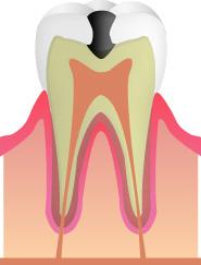 C1(虫歯の進行・エナメル質)