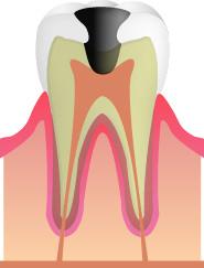 C3(虫歯の進行・神経まで達している)