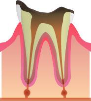 C4(虫歯の進行・根のみ残っている)