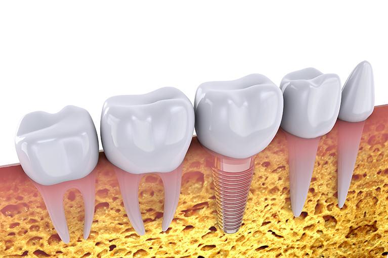 抜歯即時インプラントをおこなっています